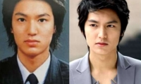 Lee Min Ho and South Korean Celebrities' Passion for Plastic Surgery