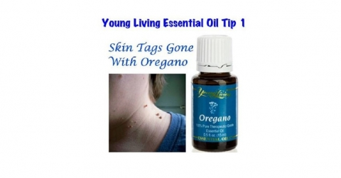 Natural Skin Tag Remedies Picture